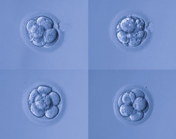 Do maternal and embryo MTHFR gene polymorphisms have any influence on embryo chromosomal abnormalities and the ongoing pregnancy rate? - Instituto Bernabeu